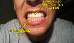 A Secret Way to Keep Your Teeth White