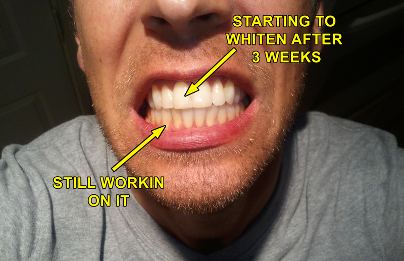 A Secret Way To Keep Your Teeth White Vitality Advocate
